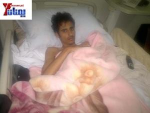 عميد جرحى الثورة السلمية بسام الأكحل
